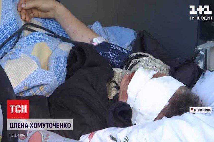 Новини Вінниці / На Вінниччині знайшли пошматованою жінку, яка доглядала за безпритульними собаками (ВІДЕО)